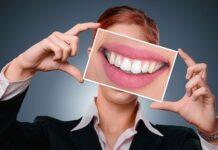 białe zęby, uśmiech, wybielanie zębów